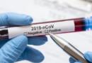 Обязан ли гражданин сдавать тест на коронавирус
